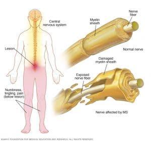 Damaged myelin sheath Multiple Sclerosis