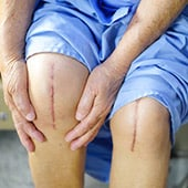 stem cell therapy knee surgery